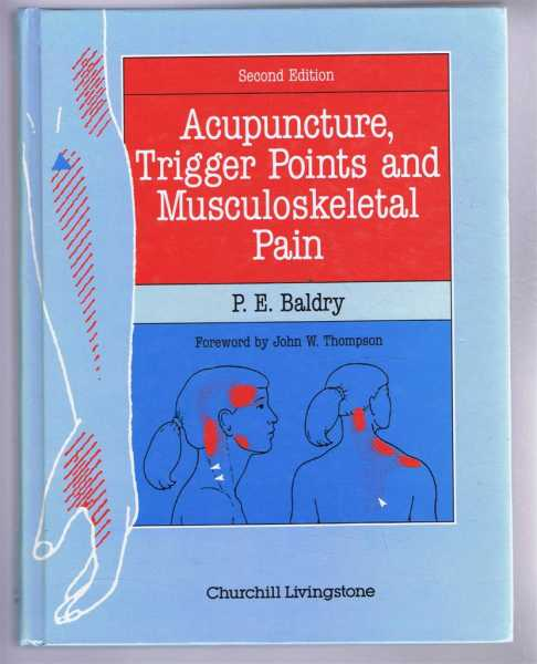 Acupuncture, Trigger Points and Musculoskeletal Pain, Baldry, P.E.