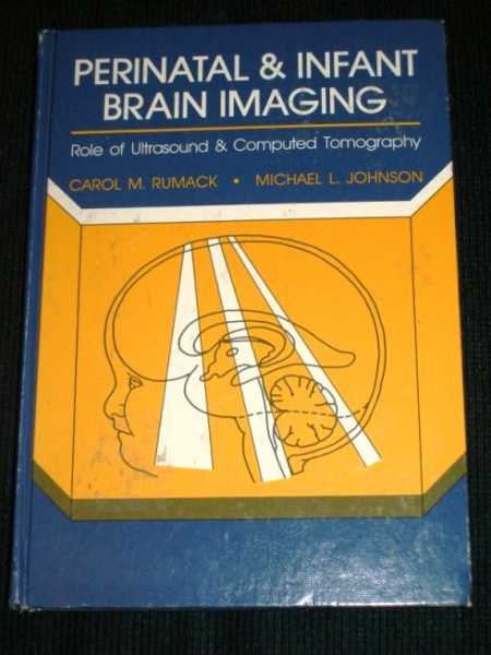Perinatal and Infant Brain Imaging: Role of Ultrasound and Computed Tomography, Rumack, Carol M.; Johnson, Michael L.